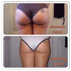 truth-about-cellulite